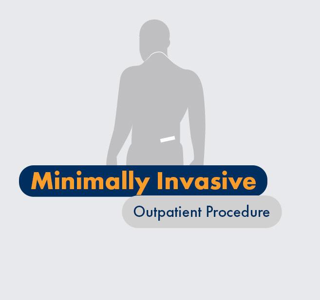 Graphic - Patient - Minimally invasive outpatient procedure