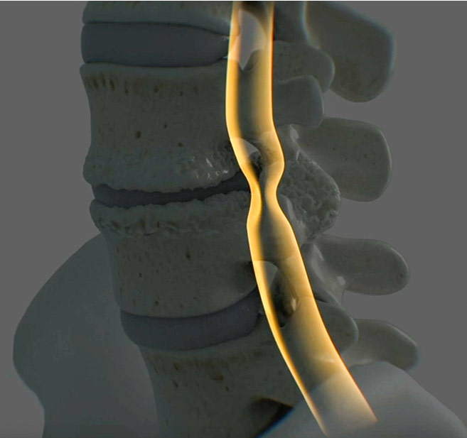 Animation Graphic - Kink in the spinal canal