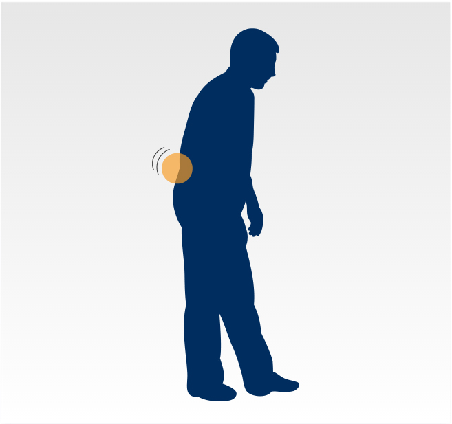 Graphic - Lower back pain while standing