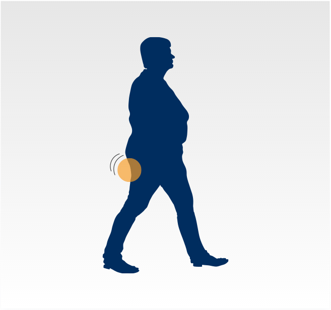 Graphic - Lower back pain and numbness while walking