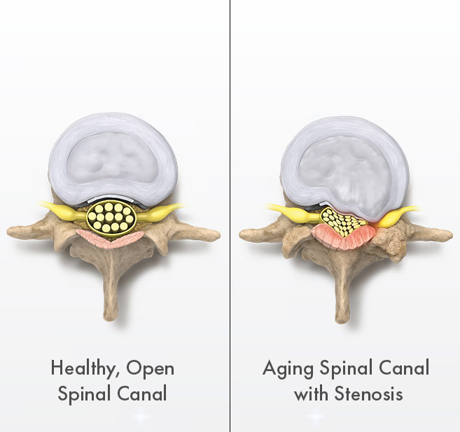 Graphic - Healthy vs. aging spinal canal with lumbar spinal stenosis