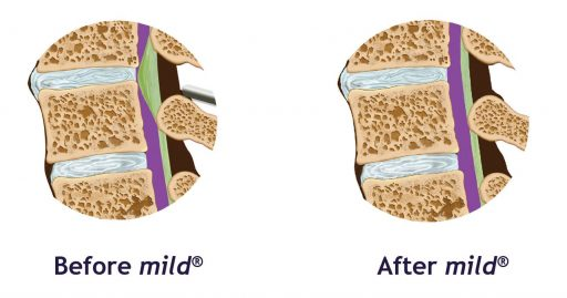 Before and after images showing the improvement in lumbar spinal stenosis after patients have undergone the mild® procedure