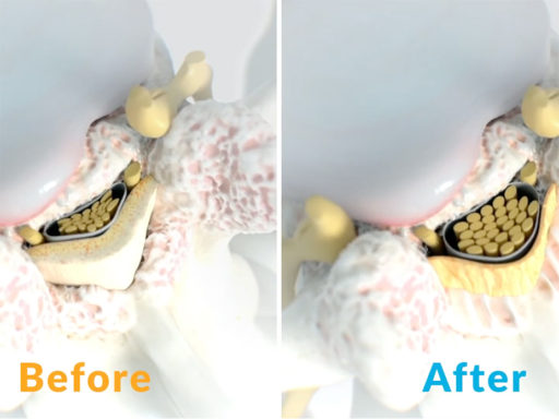 Image showing how the mild® procedure does not limit future treatment options for lumbar spinal stenosis